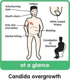 candida tünetei férfiakon